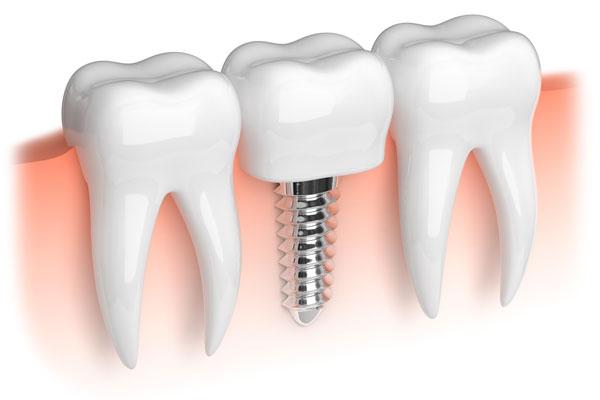Dental Implants Central Coast