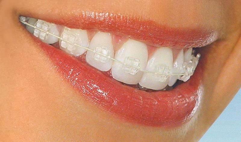 aqd-smilefast_braces