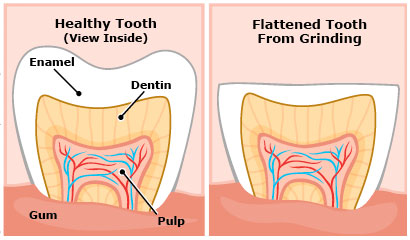 Nocturnal Bruxism (Teeth Grinding) Central Coast