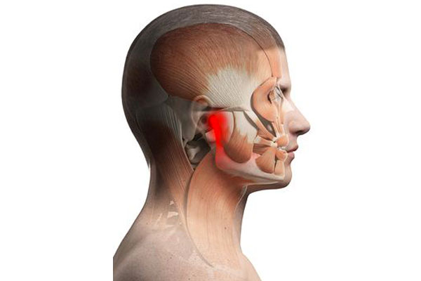 Tempero-Mandibular Joint Disorder Treatment Central Coast