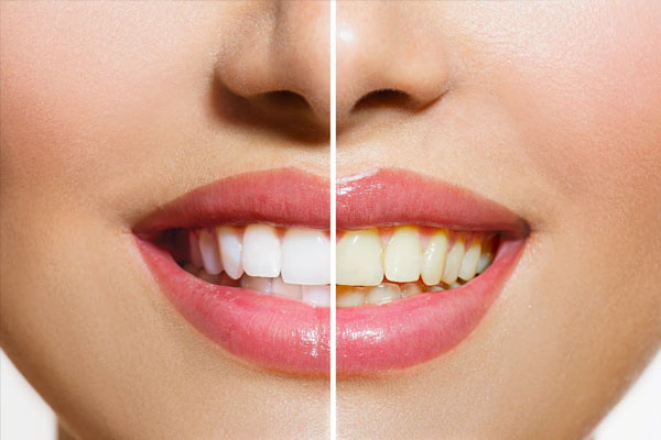 Tooth Whitening Central Coast