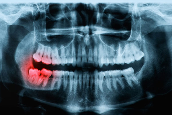 Oral Surgery Central Coast