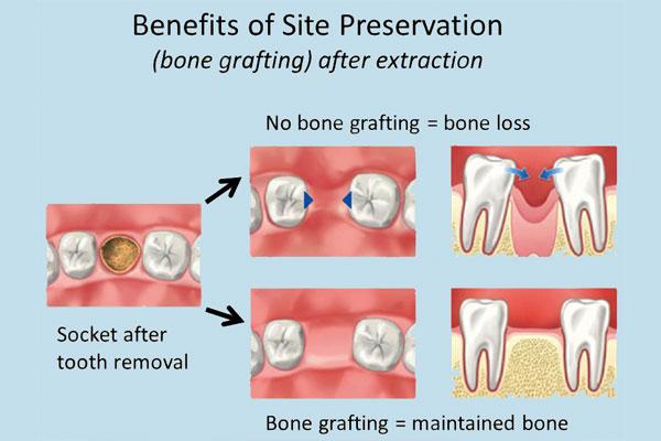 bone grafting central coast