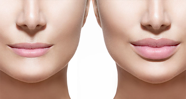 Lip Fillers and Dermal Fillers Central Coast