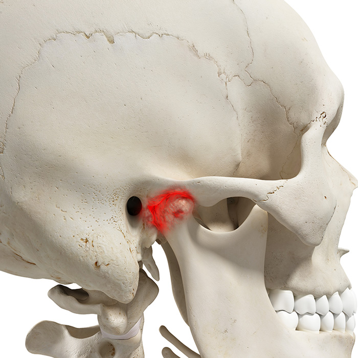 jaw-joint-disorders